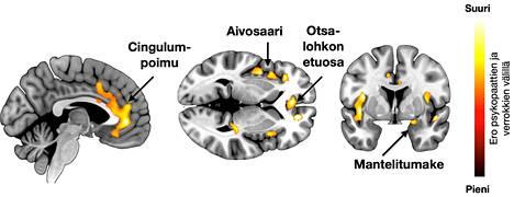 Psykopaattien aivoissa tiettyjen alueiden tiheys on alentunut.
