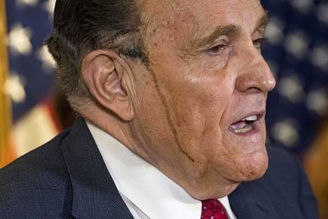 Tumma hikinoro Giulianin kasvoilla kiinnitti huomion 19. päivän lehdistötilaisuudessa.