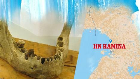 Iin Haminassa löydetyistä luista on havaittu eroavaisuuksia muihin aikakauden kalmoihin.