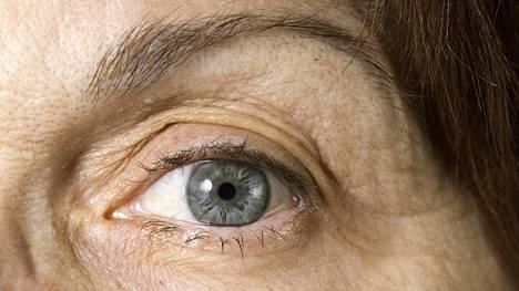 Suomessa on noin 50000 yli 70-vuotiasta, joilla on pitkälle edennyt silmänpohjan ikärappeuma.