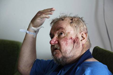 Sairaalassa Pekka Katajalla todettiin muun muassa kallonmurtuma ja aivoverenvuoto.