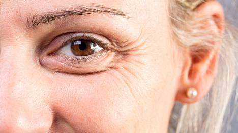 Naururypyt periytyvät lähinnä vain siinä tapauksessa, mikäli on perusluonteeltaan nauravaista sorttia tai silmän muoto on tietynlainen.