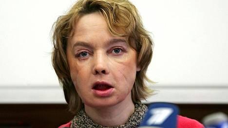 Isabelle Dinoire astui julkisuuten vuosi kasvosiirto-operaation jälkeen. Hän kuoli huhtikuussa, 11 vuotta leikkauksen jälkeen.