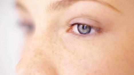 Tavallisimpia värinäön häiriöitä, puna-viher- ja viher-punaheikkoutta, esiintyy 8 prosentilla miehistä ja 0,5 prosentilla naisista.