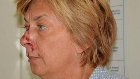 Krkin saarelta 12. syyskuuta löytyneen naisen on arvioitu olevan noin 60-vuotias.