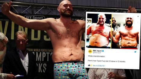 Kuvapari: Tyson Fury mätti dieetillään pihvejä, makkaraa ja pekonia – ja laihtui vuodessa 64 kiloa!