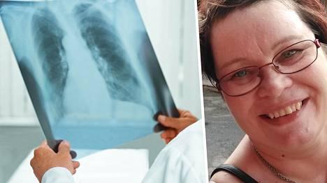 Keuhkosyövän löytyminen voi olla täysi yllätys. Syöpä on alkuvaiheessa oireeton, ja löydetään usein vasta sitten, kun alkuperäinen kasvain on jo ehtinyt lähettää etäpesäkkeitä. Yhä suurempi osa keuhkosyöpään sairastuvista on tupakoimattomia naisia.