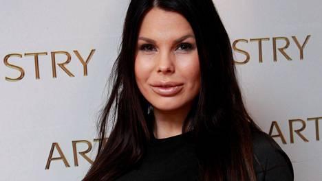 Suvi Pitkänen luopui hiustenpidennyksistään kahdeksan vuoden jälkeen.