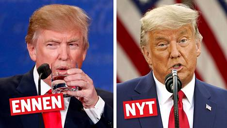 Trumpin hiukset vaikuttavat vaalien jälkeen vaalentuneen tai jopa harmaantuneen huomattavasti.