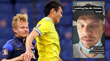 Joel Pohjanpalo sai osumaa ilmakamppailussa Kazakstan-ottelussa.