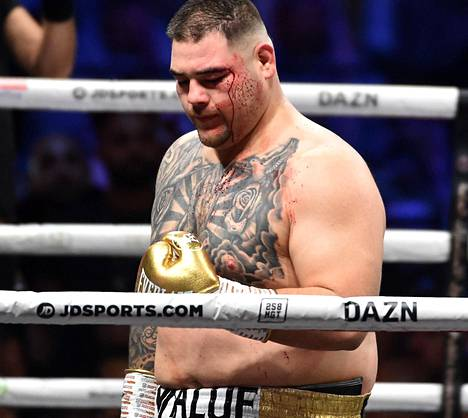 Andy Ruiz junior sai Joshua-ottelussa haavan silmäkulmaansa.