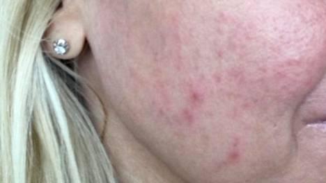 Ruusufinni yllätti Nooran nelikymppisenä – näin hän sai ihonsa kuriin muutamassa kuukaudessa