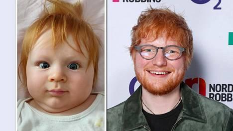 Viisikuukautinen Niklas muistuttaa hyvin paljon megatähti Ed Sheerania.