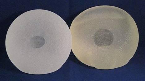 Yle: Plastiikkakirurgit varoittavat suositusta silikoni-implantista – Suomessa yli 15 000 ihmisellä