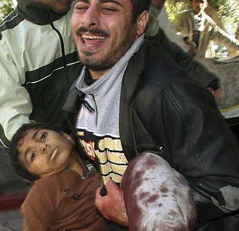 Siviiliuhrien määrä tulee nousemaan vielä rajusti, uskoo Gazassa toimiva vapaaehtoinen norjalaislääkäri.