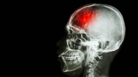 Koronavirustartunnan saaneet sairastuvat ja menehtyvät aivoverenkiertohäiriöihin huomattavasti muita todennäköisemmin.