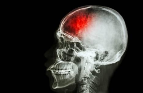 Suomessa vuosittain noin 14000 henkilöä sairastuu aivoverenkiertohäiriöön. Näistä 75 prosenttia on aivoinfarkteja.