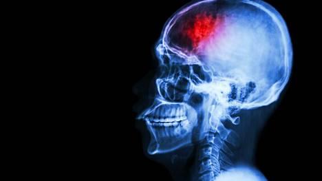 Korkea verenpaine on tunnettu aivoverenkiertohäiriöiden riskitekijä.