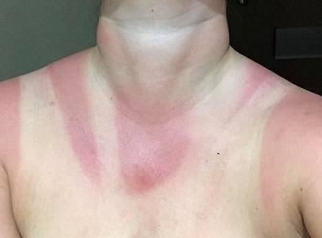 Festariauringossa palanut iho.