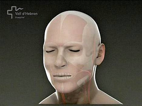 Havainnekuva potilaasta leikkauksen jälkeen. Sairaala ei ole julkistanut valokuvia miehestä.