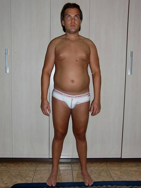 Alvesin ensimmäinen kauneusleikkaus tehtiin, kun hän oli vasta 17-vuotias. Tältä hän näytti ennen leikkauksia.