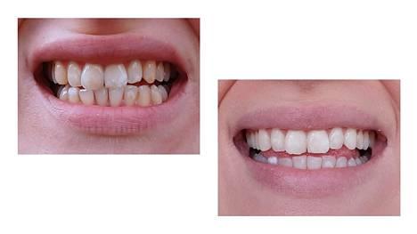 Kuvat ennen ja jälkeen hampaiden valkaisun, kiillelaikkujen poiston ja osittaisen muovipinnoituksen. Valkaisuprojektiin uppoaa helposti satoja, jopa reilu tuhat euroa.