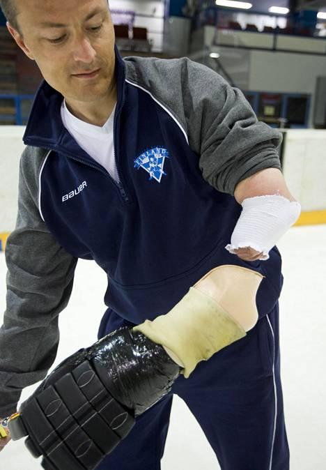 Petri Lampinen esitteli proteesiaan keväällä 2011.