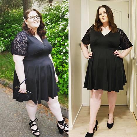 Rosa samassa mekossa ennen ja jälkeen painonpudotuksen.