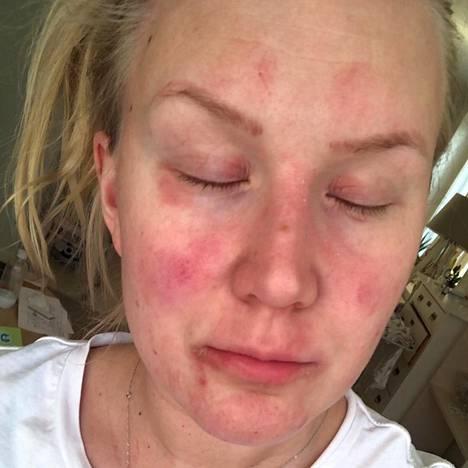 Tällainen Sinin iho on ollut pahimmillaan. Vieläkin Sini huomaa ihossa muutoksen lämmityskaudella: kun patterit huutavat lämpöä sisäilmaan, ilma kuivuu, ja silloin kuivuu pahimmin ihokin.