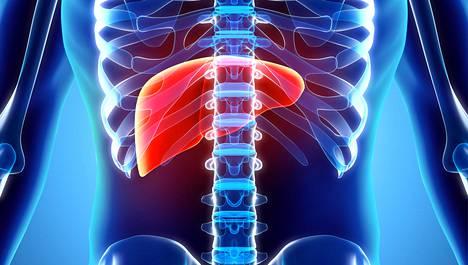 Rasvan kertyminen maksasoluihin on usein merkki laajasta aineenvaihdunnan häiriöstä, joka altistaa muun muassa diabetekselle, verenpaineen nousulle ja muille sairauksille.