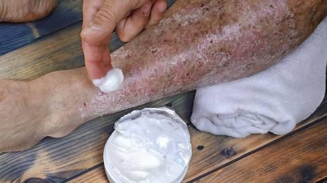 Psoriaasi on tulehduksellinen ihon ja nivelten sairaus, jota sairastaa noin kaksi suomalaista sadasta. Iholla se aiheuttaa hilseläiskiä eri puolille kehoa.