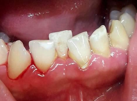 –Tässä on harjattu hampaita, mutta harjaa ei ole laitettu ikenen päälle oikealla tavalla, niin että hampaisiin on jäänyt likarantu. Kuvassa näkyy myös turvonnut ja verestävä ien.