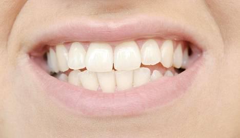 Tulehdukset eivät aina näy päälle päin vaan voivat jäädä huomaamatta niin potilaalta kuin hammaslääkäriltä.