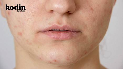 Akne on tulehdus, joten tärkeintä on rauhoittaa ihoa.