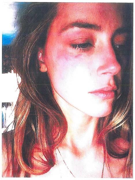 Amber Heardin Kalifornian piirikunnan ylioikeuteen toimittama kuvatodiste Johnny Deppin lähisuhdeväkivallasta.