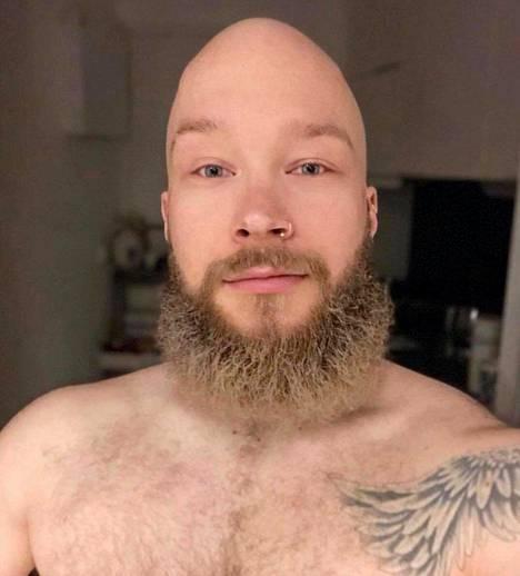 Aku kuvailee partaansa ilman metodia jäkäläkasaksi – silloin parta näyttää tältä.