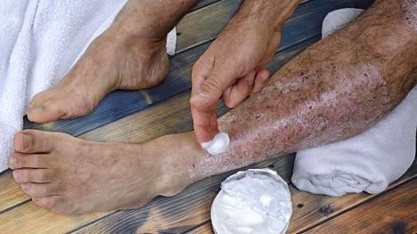 Psoriaasi on ihon ja nivelten sairaus, jota sairastaa noin kaksi suomalaista sadasta.
