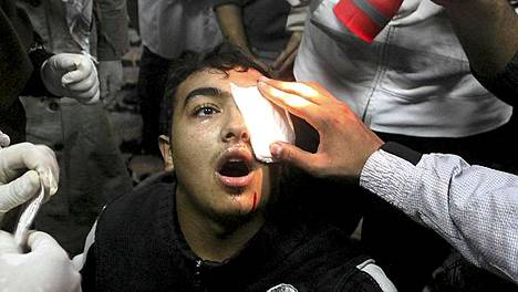 Silmäänsä vamman saanutta mielenosoittajaa autettiin mielenosoituksen keskellä Kairossa.