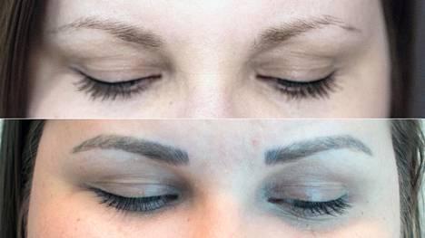 Ylhäällä kulmat ilman meikkiä ennen operaatiota, alhaalla kertaalleen tehdyt microblading-kulmat ihon parannuttua ennen vahvistusta.
