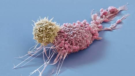 Elektronimikroskoopin kuva rintasyöpäsolusta ja sitä vastaan hyökkäävästä antigeenista.