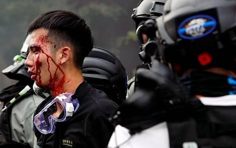 Poliisi talutti verta vuotavaa mielenosoittajaa maanantaina polyteknisen yliopiston läheisyydessä.