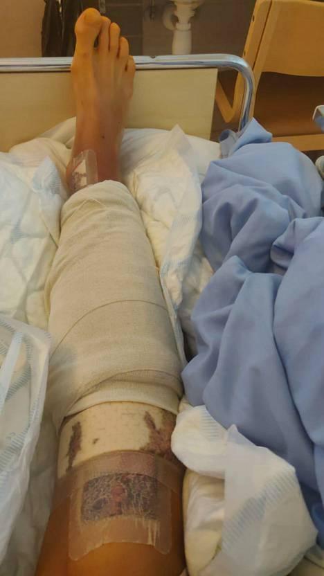 Johan Brunellin jalka on yltä päältä paketissa. Keskiviikkona on edessä seuraava operaatio.
