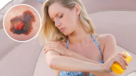 Melanoomariskiä voi alentaa huomattavasti tehokkaalla suojautumisella auringolta.