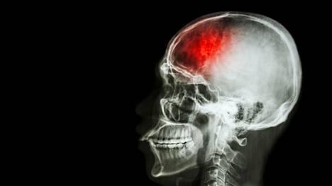 Sillä mitä syöt, on merkitystä aivoinfarktiriskiin, sanoo neurologian professori Risto O. Roine.