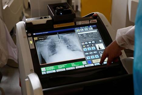 Pariisilaisen sairaalan teho-osastolle tuodulle koronaviruspotilaalle tehtiin keuhkojen röntgentutkimus 6. huhtikuuta.