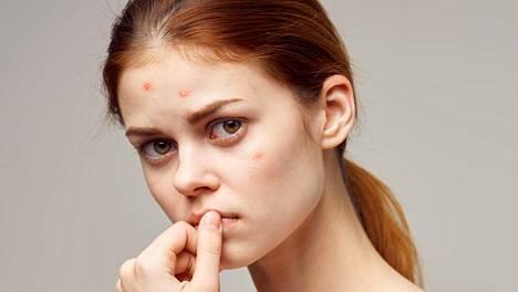 Ihon normaaliflooraan kuuluva Propionibacterium acnes -bakteeri voi otollisissa olosuhteissa aiheuttaa aknea.