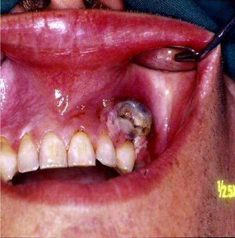 Suusyöpä Nuuska