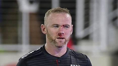 Wayne Rooneyn nenä murtui ottelussa Colorado Rapidsia vastaan.
