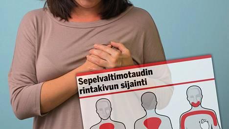 Tilastojen mukaan yli 90 prosenttia kaikista äkillisistä kuolemantapauksista on sydän- tai aivoperäisiä, ja valtaosalla sekä miehistä että naisista taustalta löytyy sepelvaltimotauti.