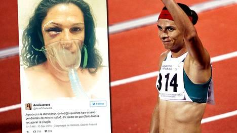 Pahoinpitelyssä loukkaantunut yleisurheilun maailmanmestari Ana Guevara julkaisi kuvan sairaalasta.